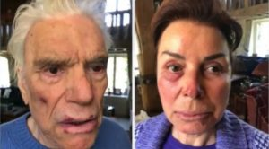 France: Far-Left Millionaire and Wife Get Beaten and Robbed by Diversity
